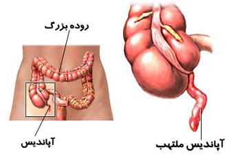 آپاندیسیت مزمن و حاد چیست و علائم آنها کدام است؟