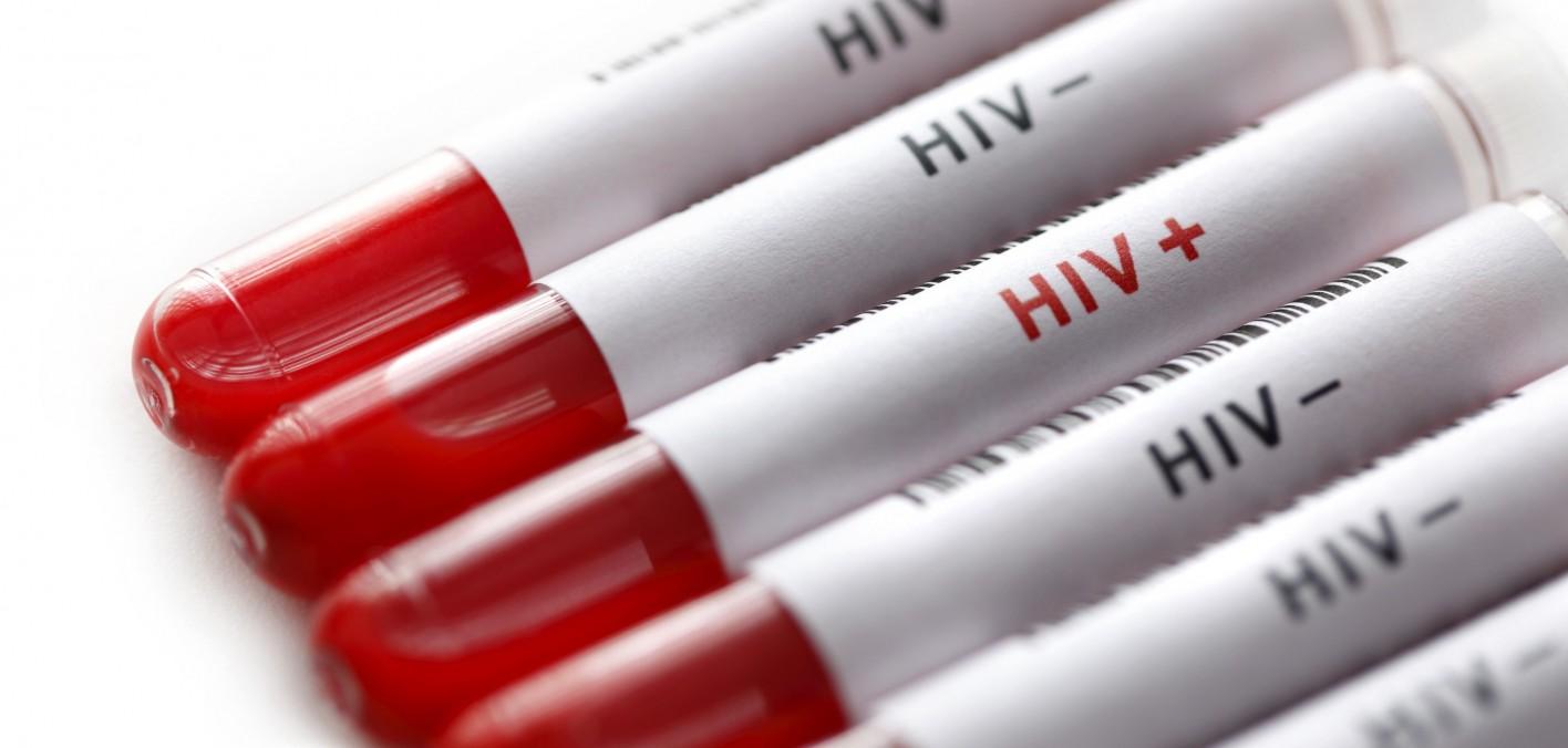 تعداد زنان مبتلا به ایدز از طریق روابط جنسی 10 برابر شده است/انجام آزمایش ایدز قبل از ازدواج بسیار مهم است