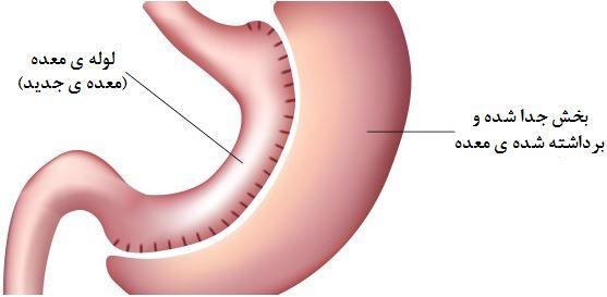 اطلاعات کامل اسلیو معده (gastric sleeve)