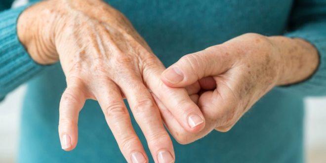 التهاب مفصل (آرتریت) چیست؟ (1)