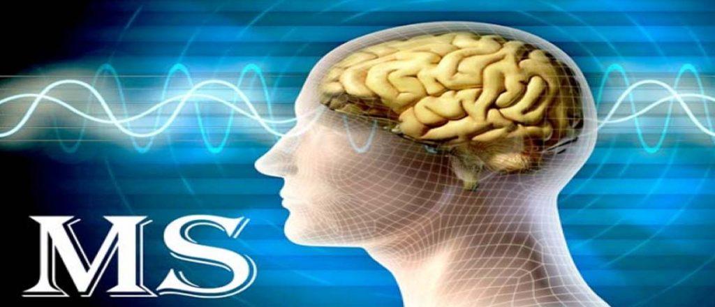 از بیماری ام اس (MS) چه می دانیم؟