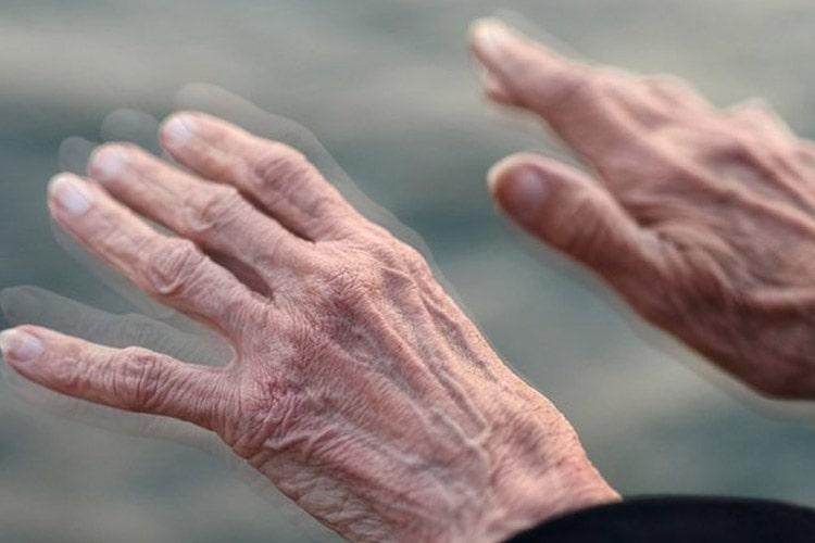 مراحل و نشانه های بیماری پارکینسون چیست؟