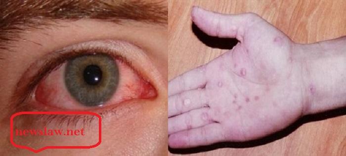 بیماری مقاربتی سوزاک چیست؟ علائم، روش های تشخیص و درمان