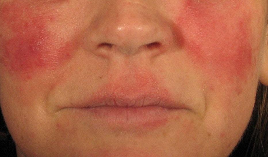 تمام بیماری های پوست، مو و ناخن (قسمت 1)