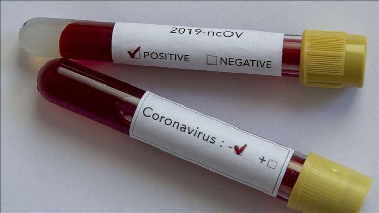تمام آنچه درباره ویروس کرونا باید بدانید!