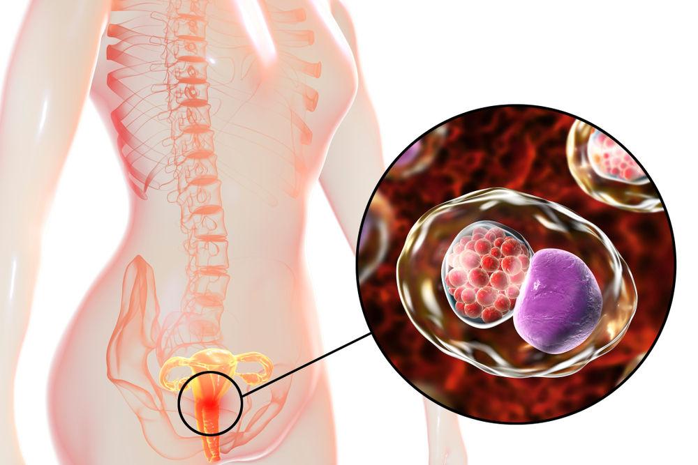 عفونت کلامیدیا تراکوماتیس؛ تعریف، علایم، راه های تشخیص و درمان