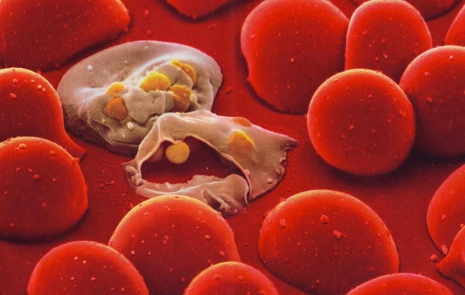 عفونت خون یا سپسیس چیست و چگونه درمان می شود؟
