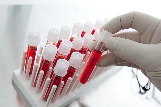 شرح ساده آزمایش های تشخیصی (قسمت 1)