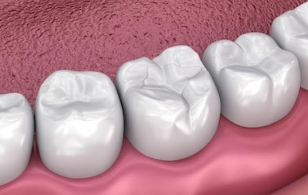 فیشور سیلانت دندان و کاربرد های آن