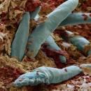 عفونت پوست سر در اثر باکتری ها