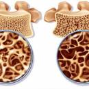 تعریف پوکی استخوان (Osteoporosis)