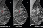 انجام سالانه ماموگرافی در زنان بالاتر از ۴۰سال
