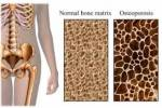 اندازهگیری میزان پوکی استخوان