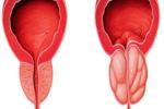 پروستات : قلب دوم مردان (قسمت پایانی)