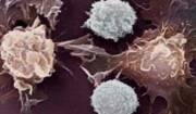 علت متاستاز سرطان سینه مشخص شد