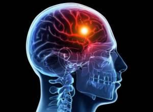 در هر پنج دقیقه یک ایرانی دچار سکته مغزی میشود