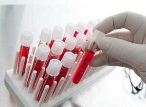 شرح ساده آزمایش های تشخیصی (قسمت 4)