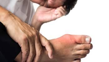 بیماری نقرس چه علائمی دارد و چگونه درمان می شود؟
