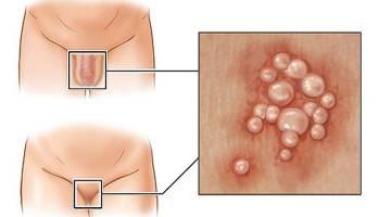 سوزاک | تمام راه های انتقال بیماری مقاربتی سوزاک که باید بدانید