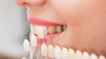 معایب و عوارض لمینت دندان که بسیار مهم است!