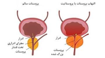 بیماری پروستاتیت | انواع پروستاتیت و درمان آن چیست؟