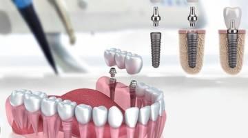 ایمپلنت دندان | انواع ایمپلنت دندان | خطرات و عوارض ایمپلنت دندان
