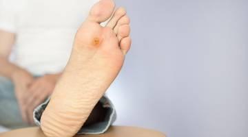 زخم دیابتی   دلایل بروز زخم دیابتی   درمان و بهبود زخم دیابتی   زخم پای دیابتی