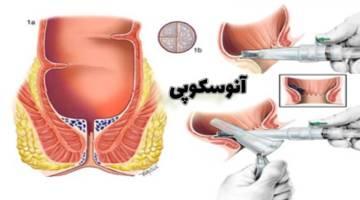 آنوسکوپی یا معاینه مقعدی | نحوه انجام آنوسکوپی | عوارض آنوسکوپی