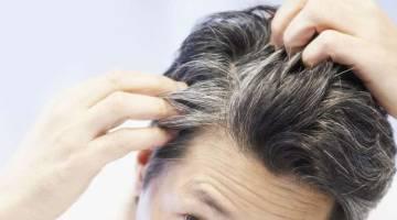 عوامل سفید شدن موها را بدانید و از آن پیشگیری کنید