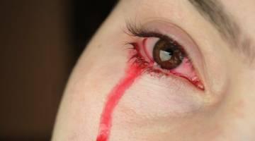 بیماری همولاکریا یا اشک خونین | دلایل خونریزی چشم چیست؟!