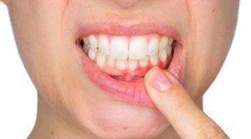 بیماری پیوره | بیماری عفونتی بافت های اطراف دندان