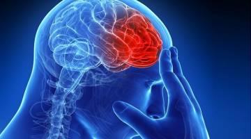 سکته مغزی در زنان و دلایل ایجاد آن