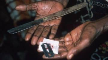 ختنه زنان   تاریخچه و انواع آن    پیامد های منفی و آسیب زا ختنه در زنان